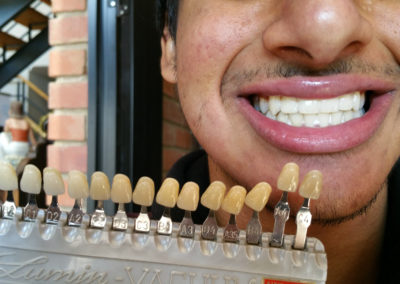 before-after-teeth-whiteing