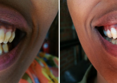 before-after-teeth-whitening1