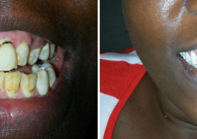 before-after-teeth-whitening10