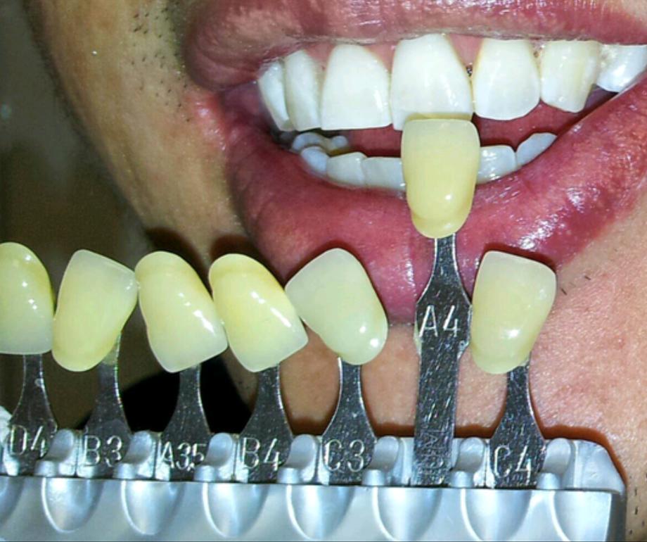 Sandton Dental Teeth Whitening Bad Breath Clinic Bettasmile